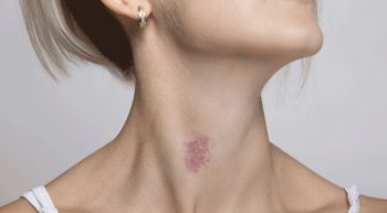 red-hickey